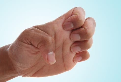 تمارين اليدين للتنحيف - تمرين المخلب