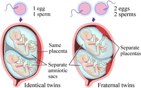 توأم في كيسين منفصلين-أنواع التوأم