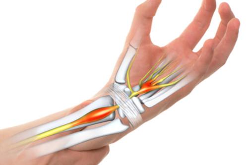 عملية تسليك الأوتار - عملية تسليك الأوتار في اليد