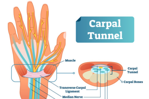 عملية تسليك الأوتار - أسباب اختناق عصب اليد