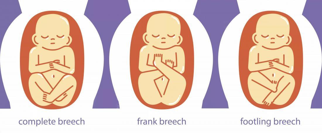 وضعية الجنين في الشهر التاسع - وضعية الجنين المقعدي