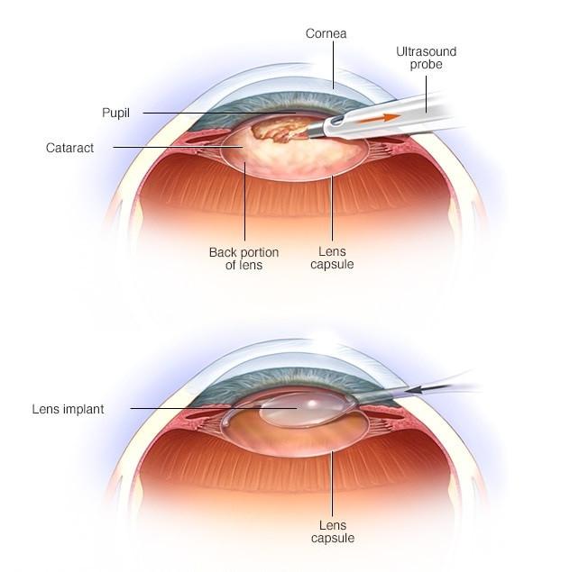 عملية المياه البيضاء - شرح مصور لعملية المياه البيضاء في العين