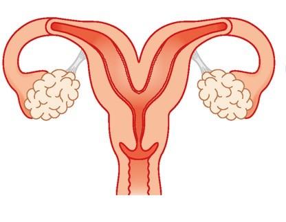أسباب تشوهات الرحم- الرحم ثنائي القرن