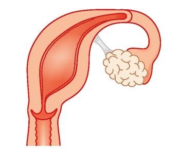 أسباب تشوهات الرحم- الرحم أحادي القرن