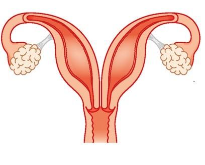 أسباب تشوهات الرحم- الرحم المزدوج