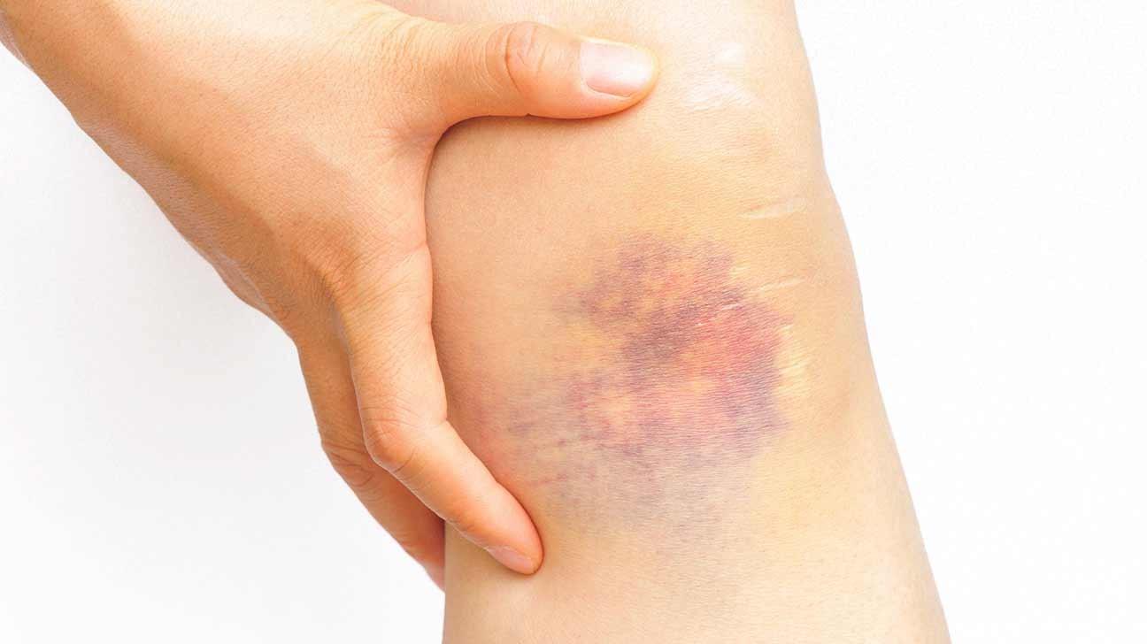 ظهور نقط حمراء تحت الجلد-الكدمات