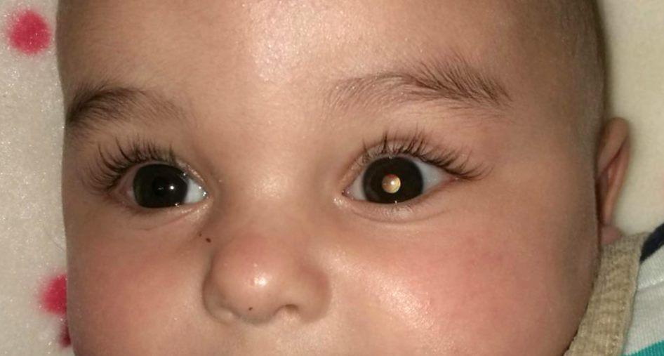 أمراض العيون عند الأطفال بالصور - ورم الشبكية