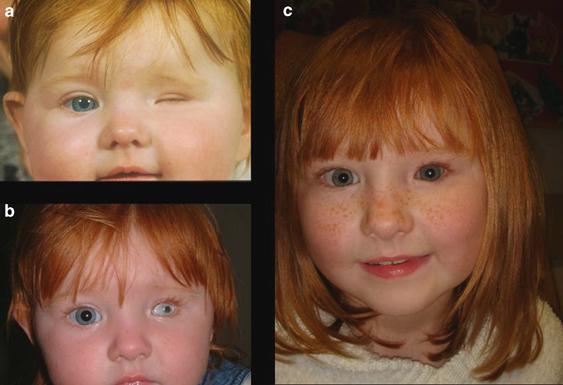 أمراض العيون عند الأطفال بالصور - عين صغيرة