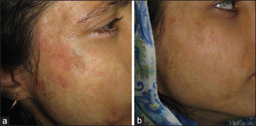 تقشير البشرة بالليزر - شكل الوجه بعد جلسة الليزر