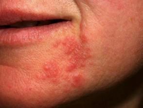 حبوب حول الفم - التهاب الجلد حول الفم