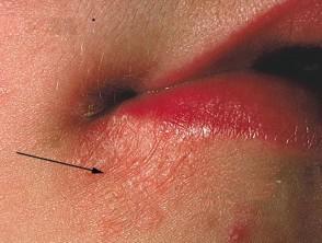 حبوب حول الفم - التهاب الجلد جول الفم وتقشره
