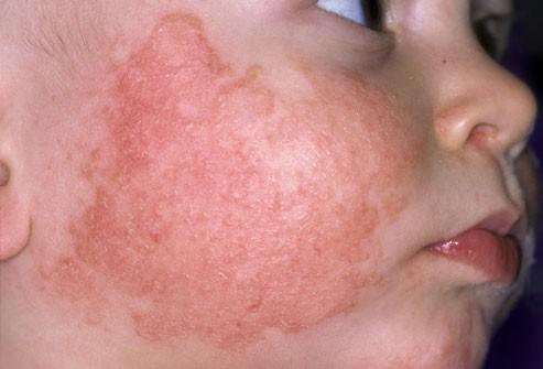 الطفح الجلدي عند الاطفال-الإكزيما