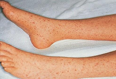 الطفح الجلدي عند الاطفال-حمى الجبال الصخرية المبقعة