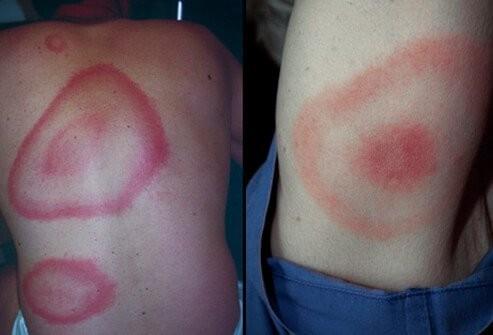 الطفح الجلدي عند الاطفال-مرض لايم