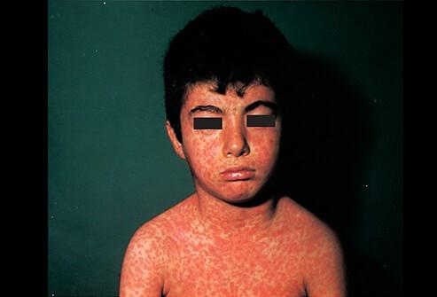 الطفح الجلدي عند الاطفال-الحصبة