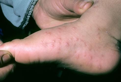 الطفح الجلدي عند الاطفال-مرض كوكساكي