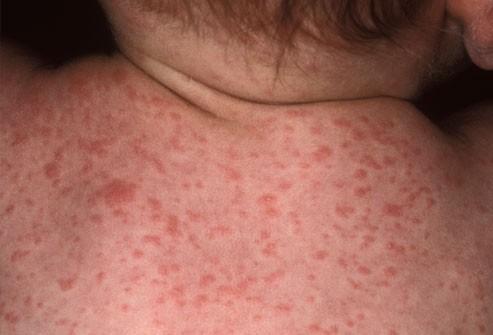الطفح الجلدي عند الاطفال-الحمى الوردية