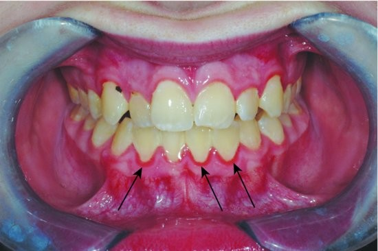 أنواع التهاب اللثة-التهاب اللثة المزمن