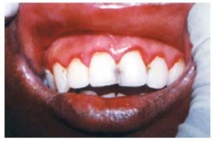 أنواع التهاب اللثة-الحمامي اللثوية الخطية