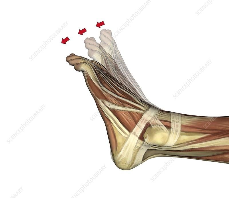 الشد العضلي في الساق-الانثناء الأخمصي