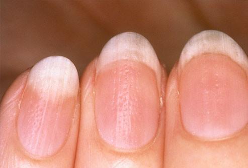 سبب اصفرار الأظافر - الأظافر المتموجة