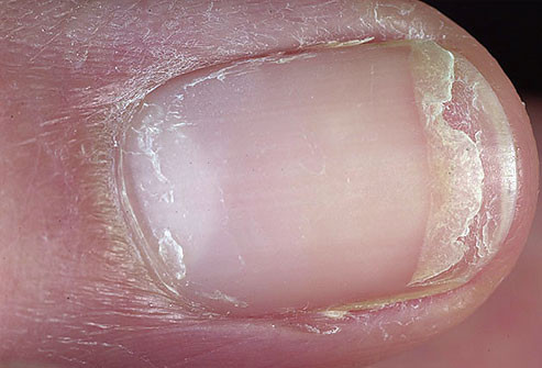 سبب اصفرار الأظافر - الأظافر المتشققة