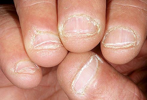 سبب اصفرار الأظافر - قضم الأظافر