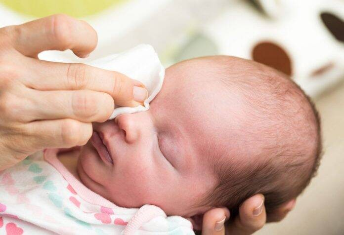 أعراض-انسداد-القناة-الدمعية-للرضع-تنظيف-العين